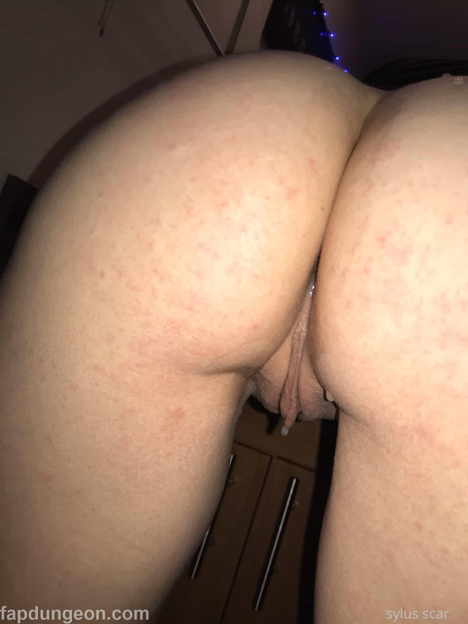 Sylus Scar Tits